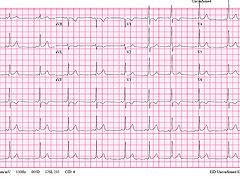 Img EKG1