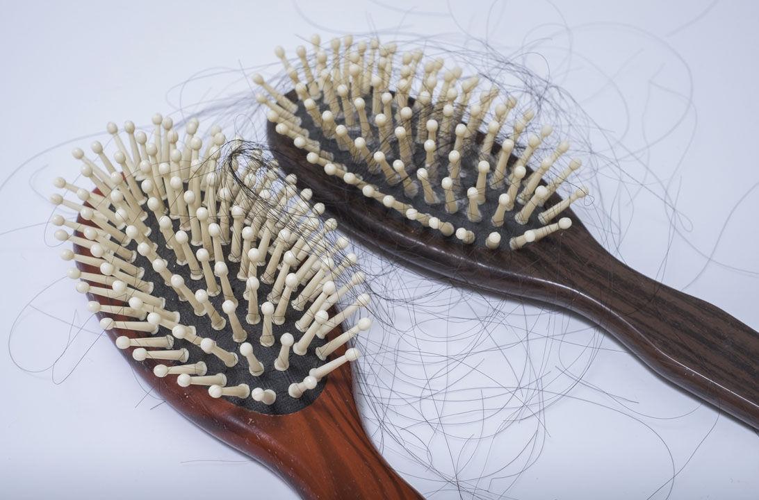 Img alopecia areata hd