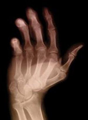 img_artritisreumatoide