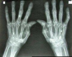 Img artrtitis