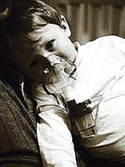 Img asma1