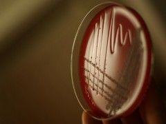 Img bacteria adn1