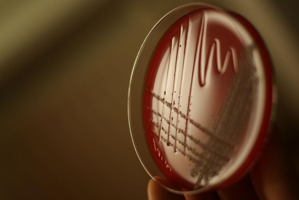 Img bacteria adn hd