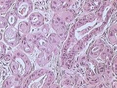 Img cancer pecho1