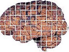 Img cerebro1