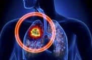 Img debes saber cancer pulmon listp