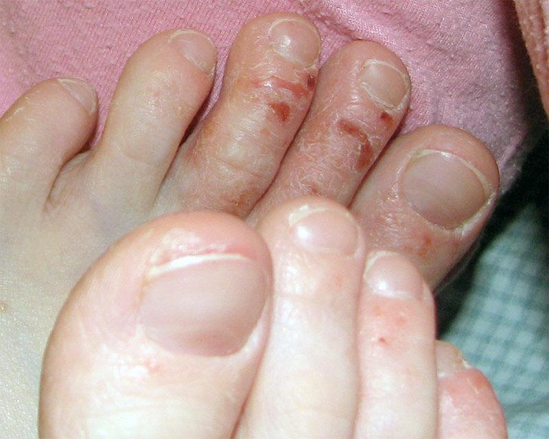 Img dermatitis