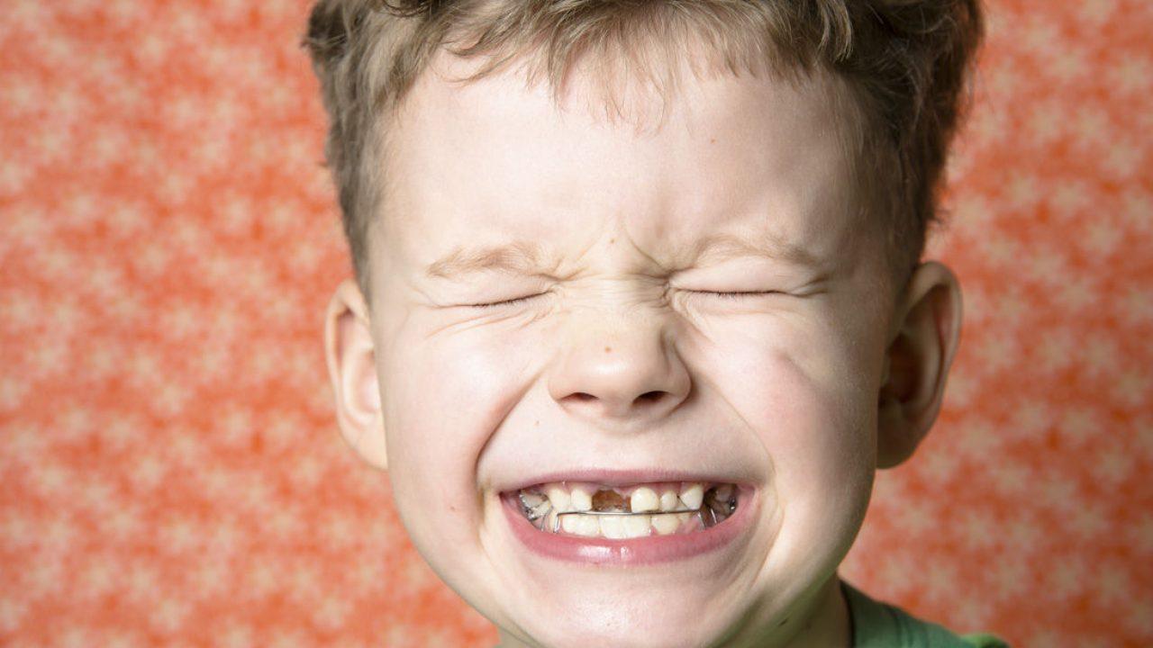 cuantos son los dientes de leche de un niño