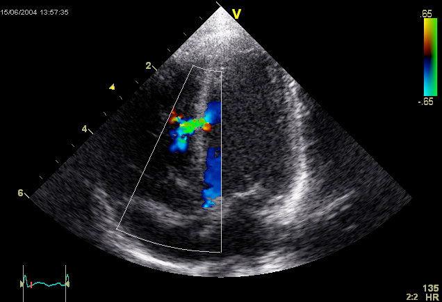 Img ecocardiografia