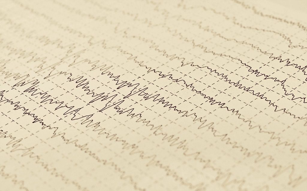 Img epilepsia hd
