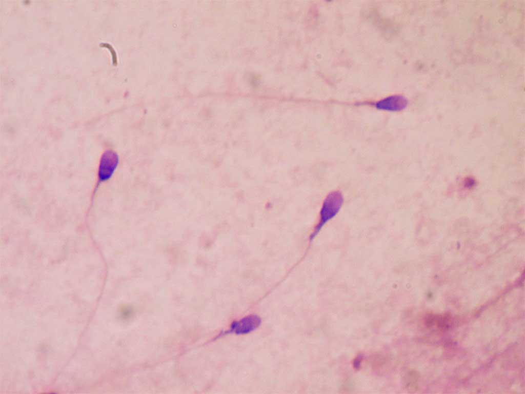 Img espermatozoides