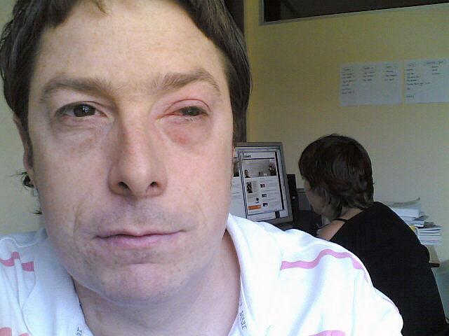 img_infeccion lacrimal