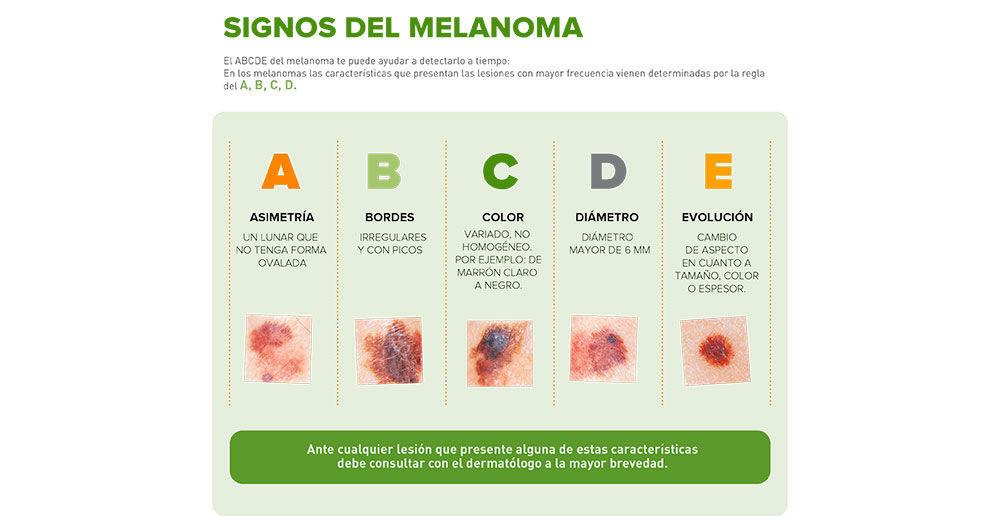 Img infografia melanoma aecc