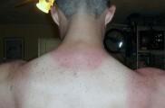 Img melanoma manchas list