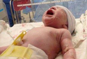 Img ombligo recien nacido