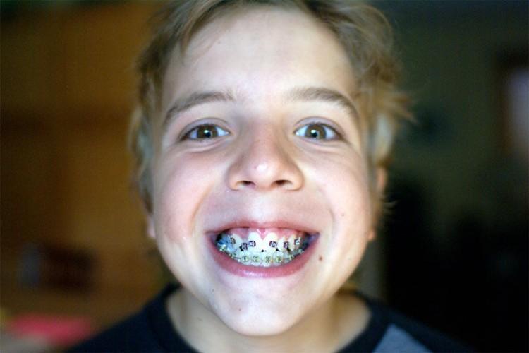 Img ortodoncia grande