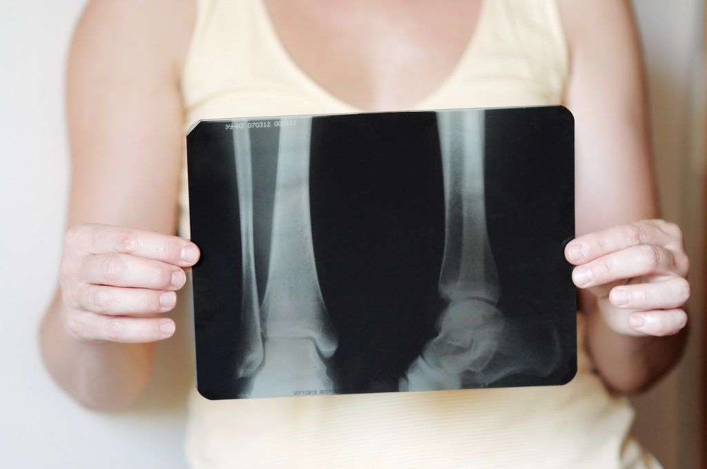 Img osteoporsis hd