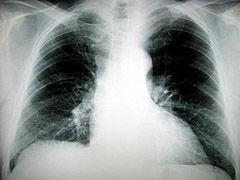 Img pulmon1