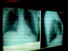 Img pulmones11