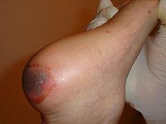Img ulcera1