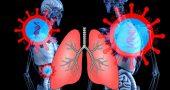 sars-cov-2 pulmones