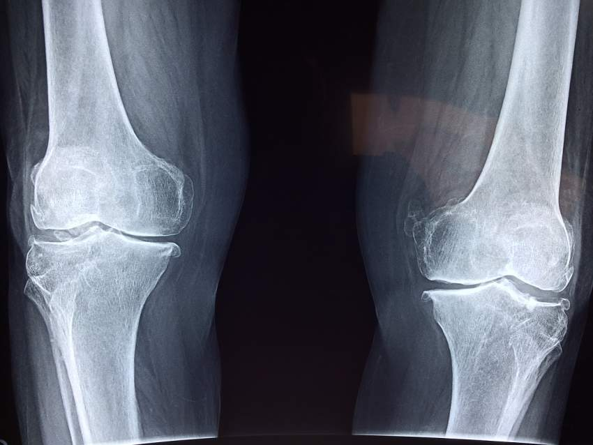 tendones huesos colageno magnesio