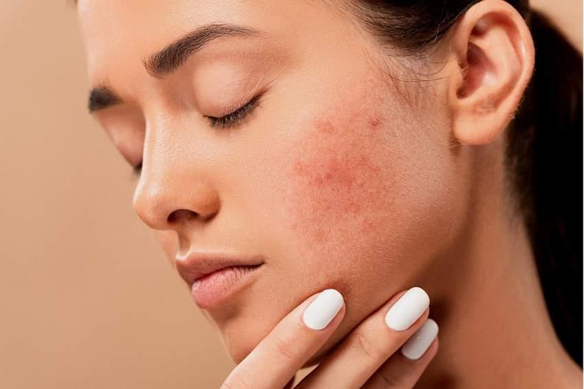 mascarilla piel acné