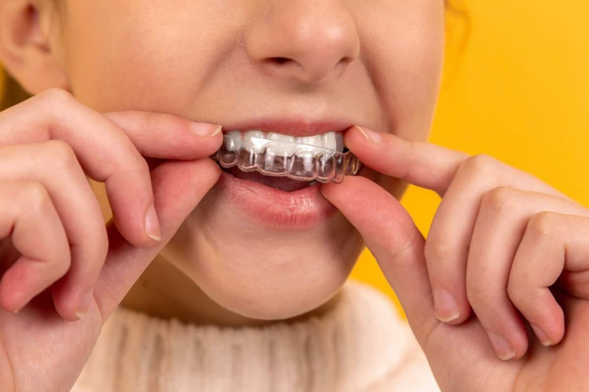 ferula alineador dientes