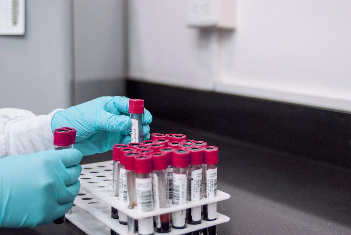 pruebas para diagnosticar celiaquía