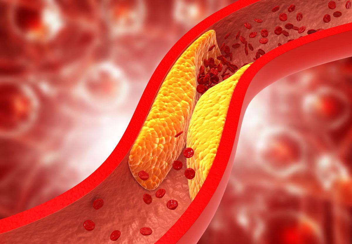colesterol niveles buenos