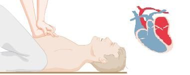 Info masajecardiaco1 info