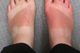 Qué hacer con las quemaduras provocadas por el sol | EROSKI CONSUMER