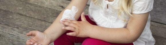 Dermatitis atópica: la importancia de cuidar la piel